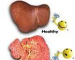 Bệnh Viên gan B là gì ?